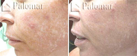 fractional laser for acne scar - before and after