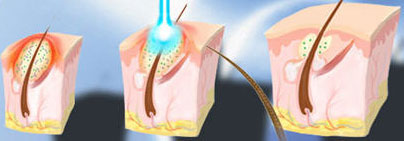 diagram of Blue Light acne treatment
