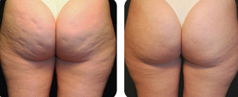 before and after cellulite treatment of the buttocks using Thermage