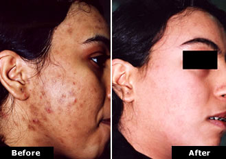 acne treatment with Cosmelan - before and after