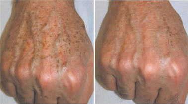 before and after IPL anti-aging hand treatment