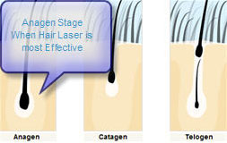 diagram showing stage of hair growth when laser treatment is most effective