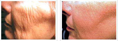 laser skin resurfacing of the cheeks - before and after