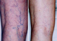 before and after leg vein treatment with Palomar 1064