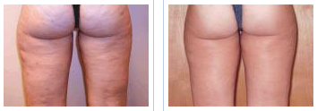 cellulite treatment with mesotherapy - before and after