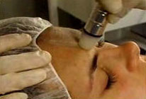 microdermabrasion treatment on female patient's forehead