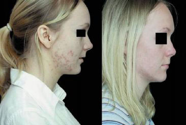 before and after Blue Light Acne Treatment