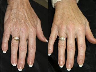 before and after hand rejuvenation with Radiesse