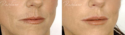 Restylane injections - marionette lines