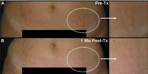 before and 1 month after fractional laser treatment for abdominal stretch marks