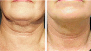Thermage treatment of the chin and neck