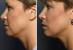 Thermage before and after treatment - female patient, face