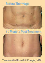 before and 10 months after Thermage treatment for the midsection