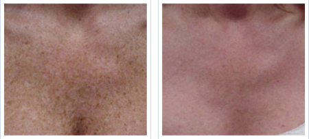 IPL decolletage treatment - before and after