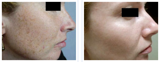Beverly Hills Photofacial IPL for Pigmentation and Sun