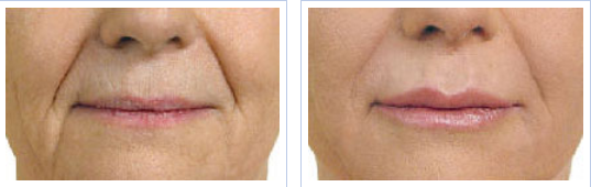 Juvederm treatment for lip lines/marionette lines - before and after
