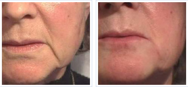 Juvederm for the corners of the mouth - before and after