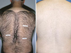 before and after light-based hair reduction - male back hair