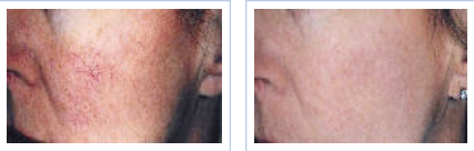 rosacea treatment with LuxG pulsed light - before and after