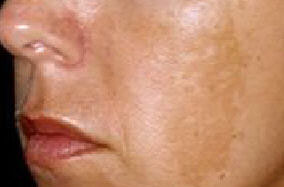 melasma of the cheek