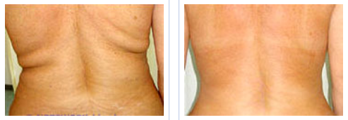 mesotherapy treatment for back fat - before and after