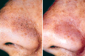 microdermabrasion treatment for blackheads on the nose - before and after