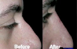 Radiesse injections to the nose - before and after