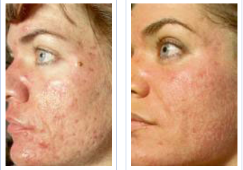 acne before and after 12 sessions of NeoStrata chemical peels