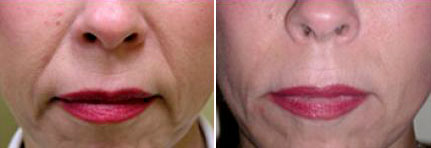 before and after Radiesse injections