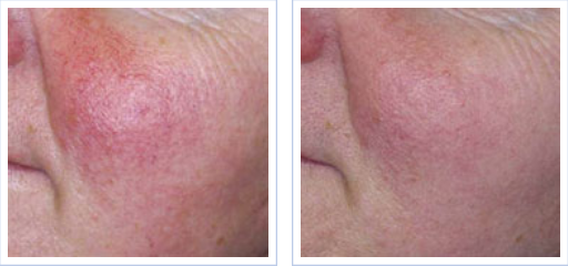 IPL treatment for rosacea - before and after