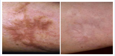 laser resurfacing for discolored skin - before and after