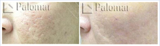 Starlux fractional laser for acne scars - before and after