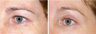 Thermage skin tightening around the eyelid - before and after