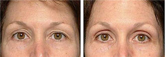 Thermage skin tightening of the brow - before and after