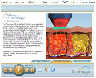 Thermage cellulite video