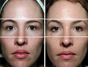 Thermage for upper, mid and lower face - before and after