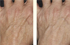 Thermage skin tightening for hands - before and after