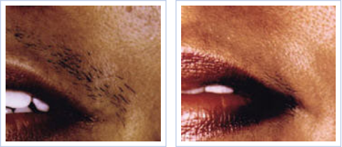 light-based hair reduction on female upper lip - before and after