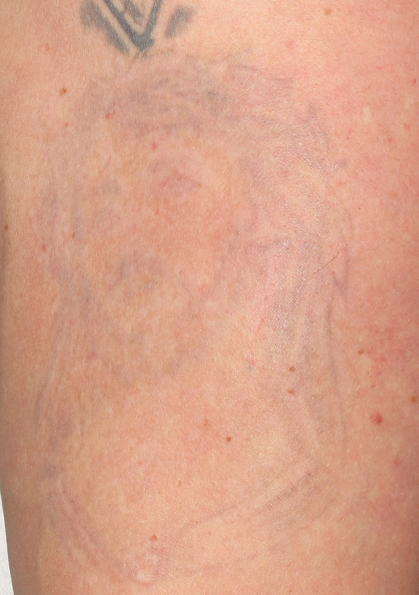 tattoo after treatment with the Spectra laser in Altoona and State College, Pennsylvania