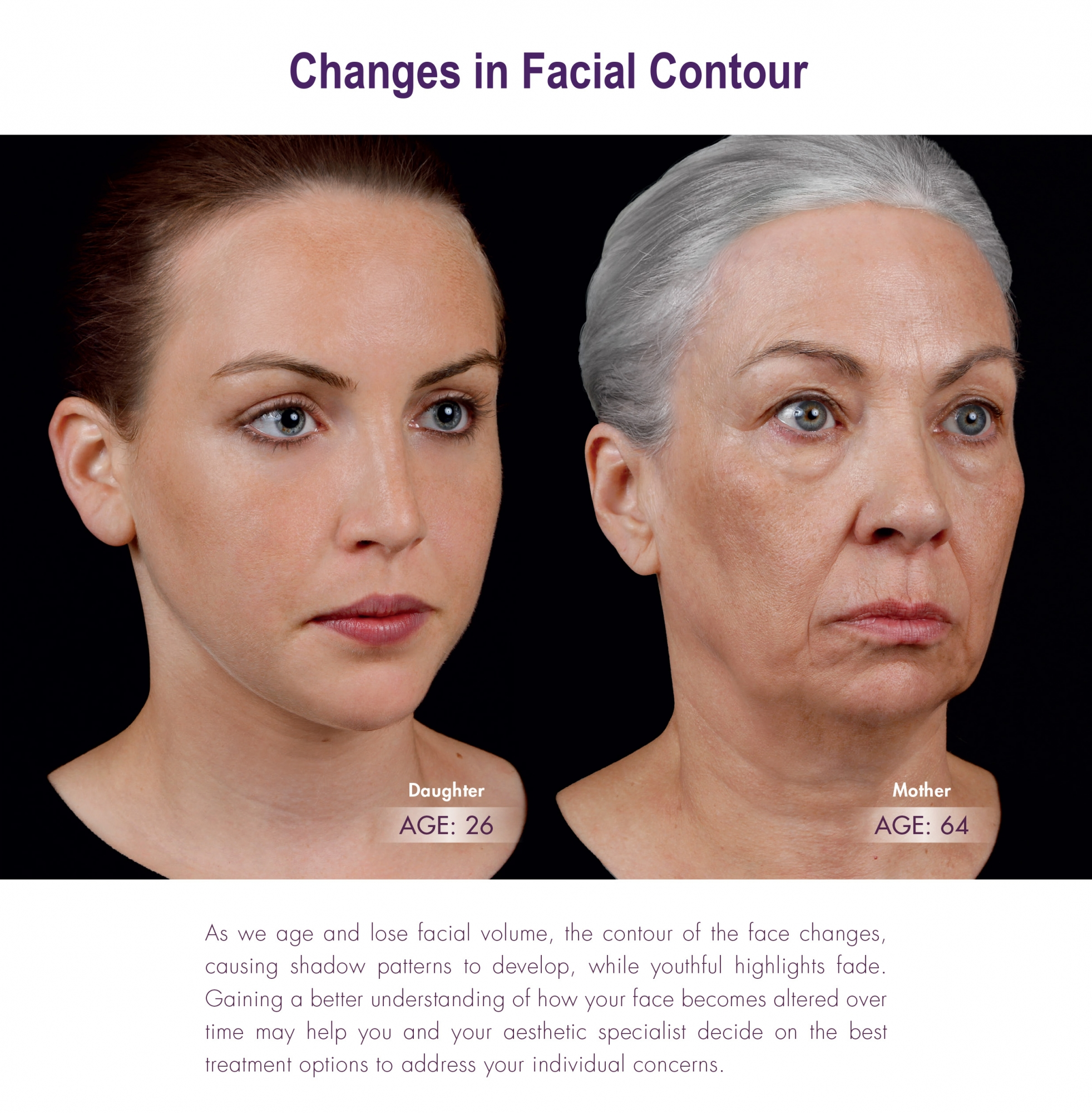 changes in facial contour with age - learn how Juvederm can help!