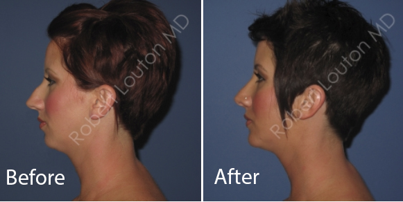 before and after rhinoplasty | actual patient of Blair Plastic Surgery