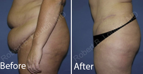 before and after tummy tuck surgery by Dr. Robert Louton | Blair Plastic Surgery
