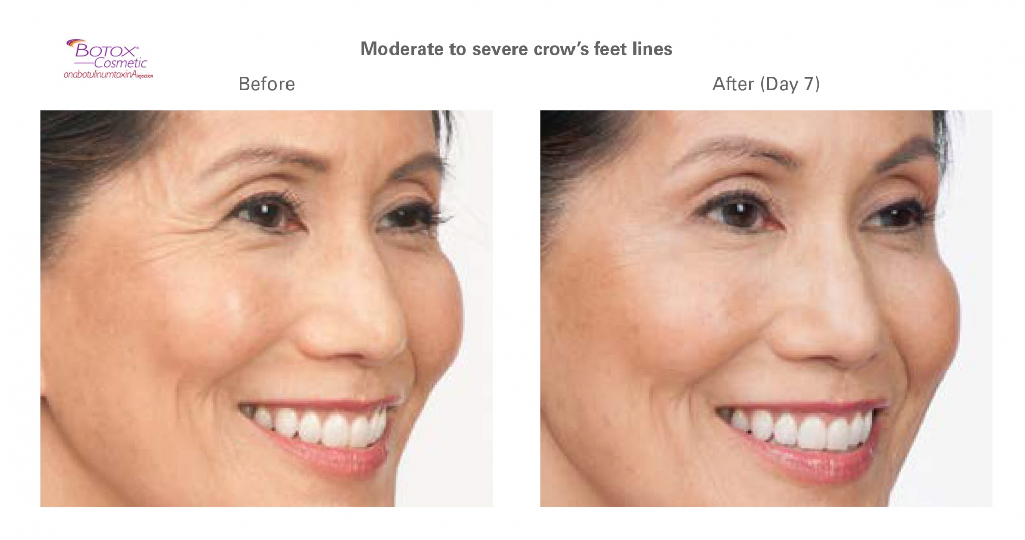 Botox for crow's feet - before and after