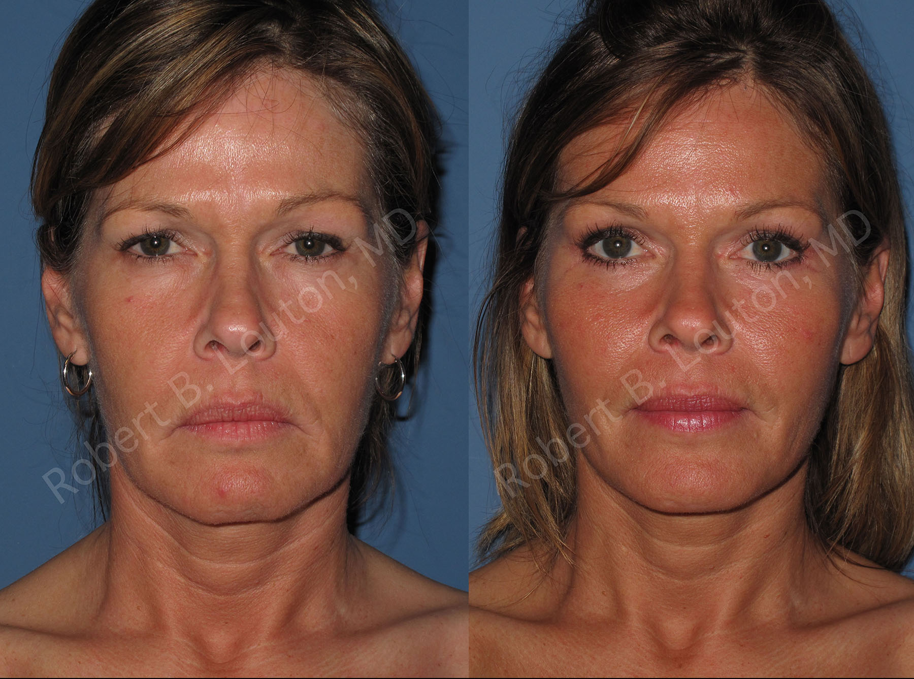 endoscopic facelift before and after - Dr. Robert Louton, Blair Plastic Surgery