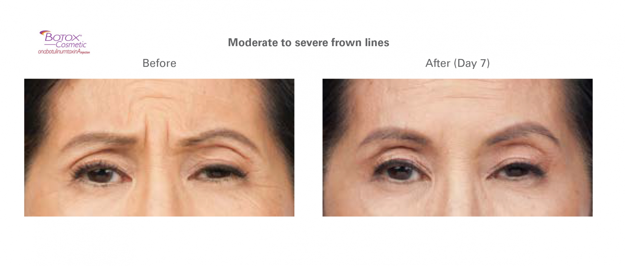 before and after results for Botox treatment of the brow