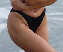 laser hair removal for the bikini area | Pennsylvania