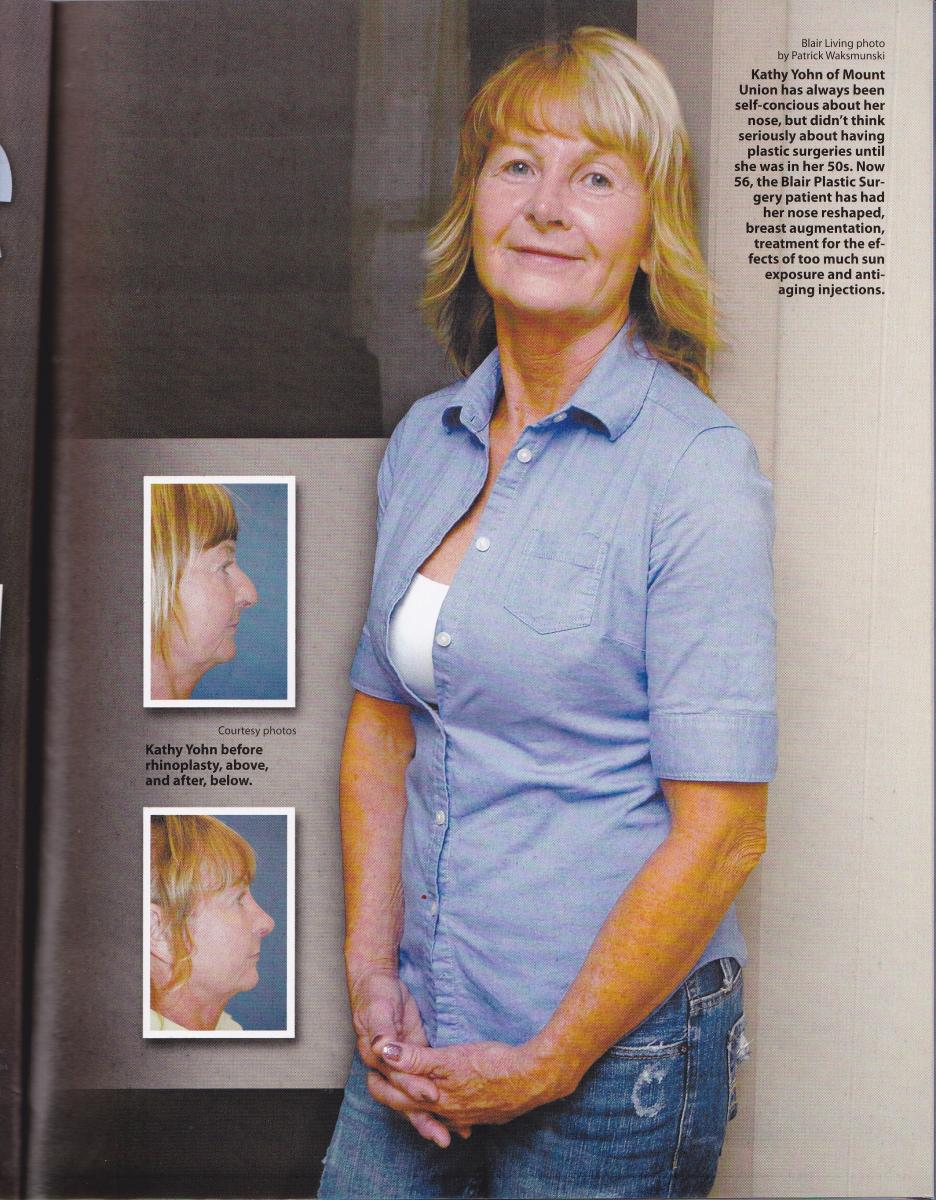 rhinoplasty patient story in Blair Living | Altoona, State College, PA