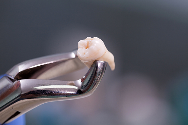 Brighton dentist holds tooth removed from a patient with gum disease.