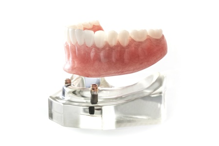 lower denture with dental implants