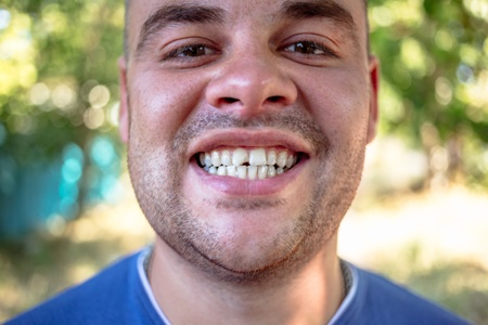 man showing his chipped front tooth